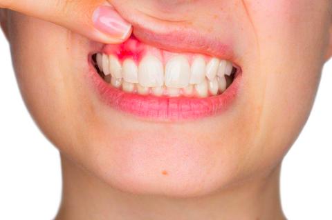 La parodontite: informazioni e consigli