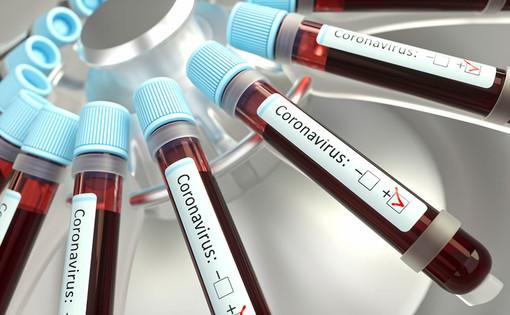 Coronavirus, a marzo oltre 1.000 casi di contagi sul lavoro in Piemonte: è la seconda regione più colpita