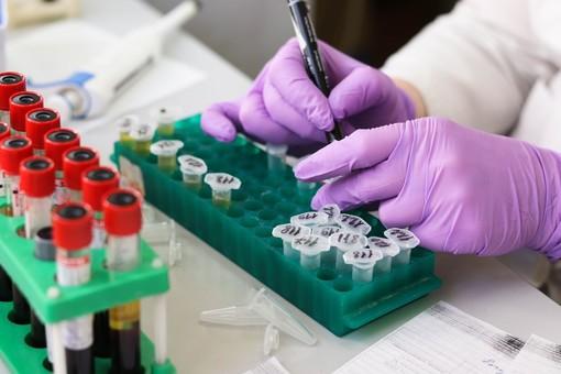 Coronavirus Piemonte: salgono a 43 i deceduti, l'età media è di 80 anni
