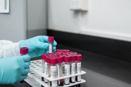 Coronavirus Piemonte: ricoveri in terapia intensiva in calo, oggi nessun nuovo decesso